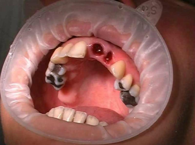 Альвеолит после удаления зуба как лечить в домашних условиях 348