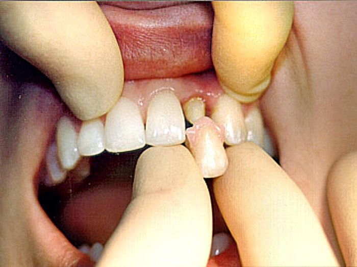 Перед тем как ставить коронку на зубы
