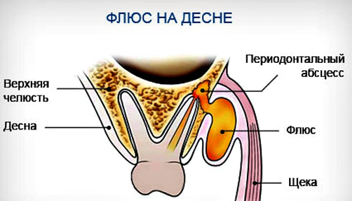 Шишка возле зуба с гноем
