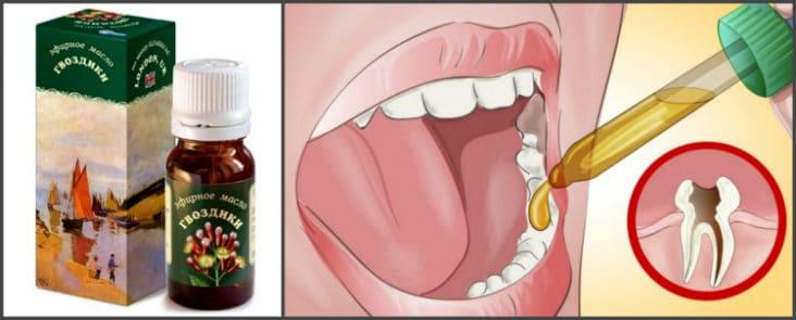 Средство от боли в зубах народные средства