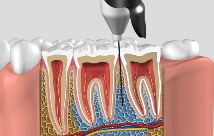 Как сделать так чтобы заморозка зуба отошла