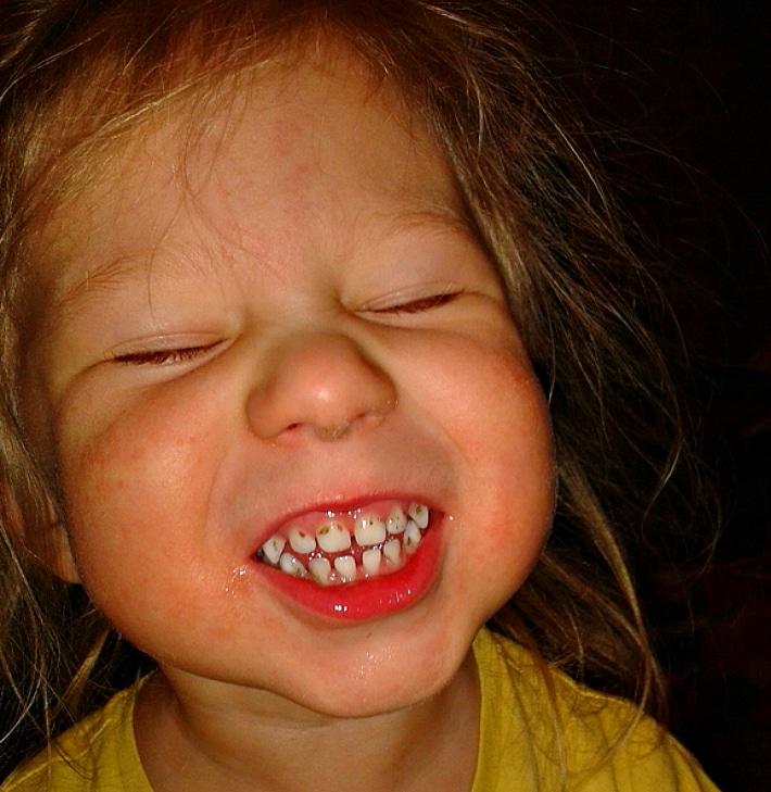 У малышей темнеют зубы