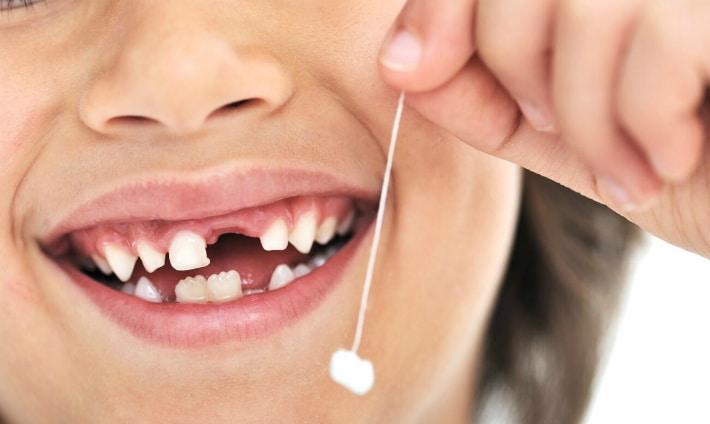 Что делать, если у ребенка выпал молочный зуб?