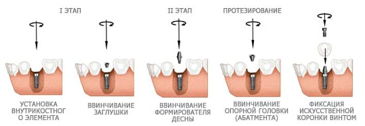Трансмукозальный способ установки импланта