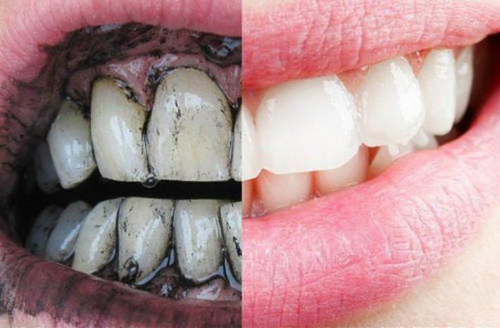 Как сделать так что бы зубы не гнили