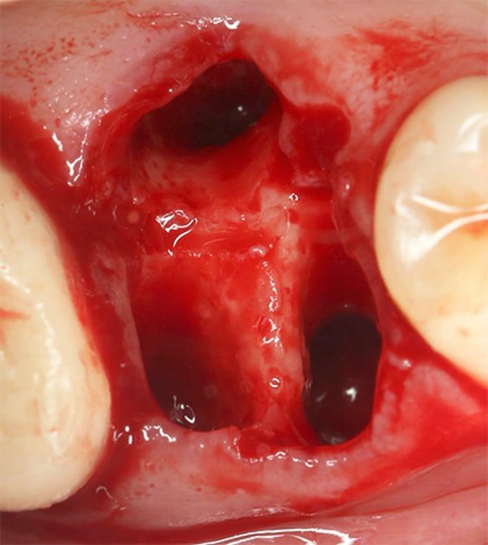 Как долго кровь после удаления зуба мудрости