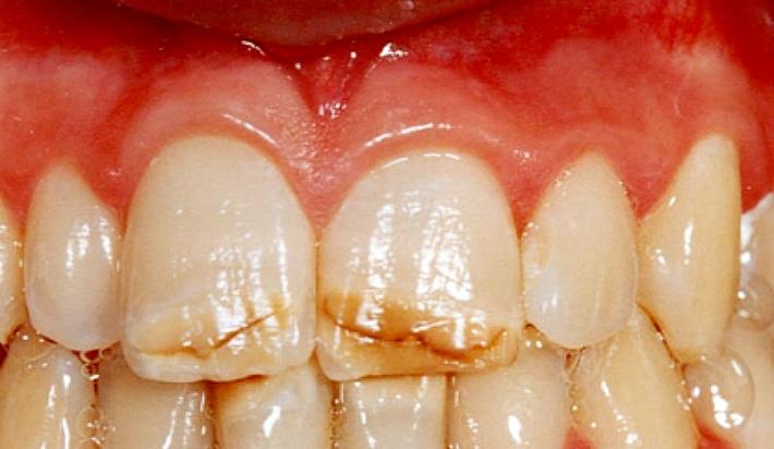 Березовый уголь отбеливания зубов