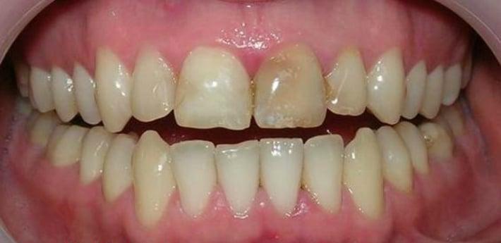 Тон зубной эмали