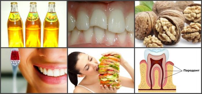 Факторы ухудшающие состояние зубов.