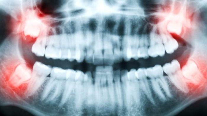Особенности рентгена зубов