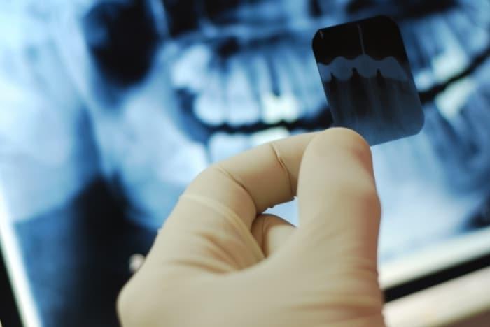 Снимок зубов при беременности
