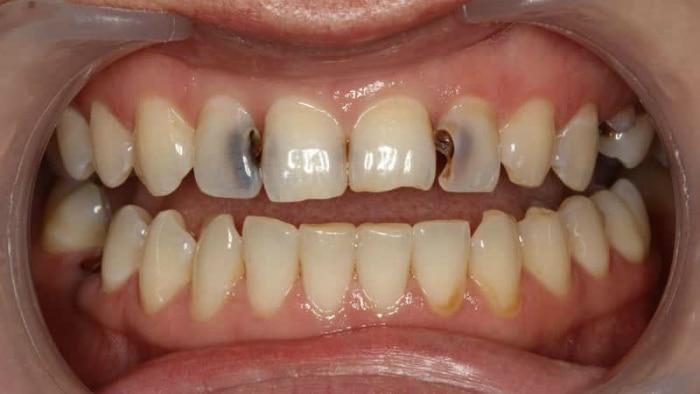 Боль в зубах как результат глубокого кариеса