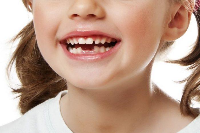 Можно ли удалять два зуба сразу рядом?