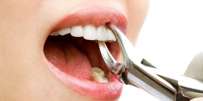 Температура после вырывания зуба