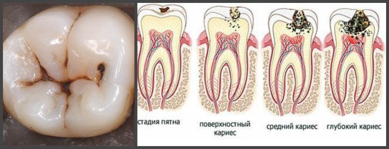 Болит зуб и отдает в голову, висок, челюсть, ухо, глаз – причины ...