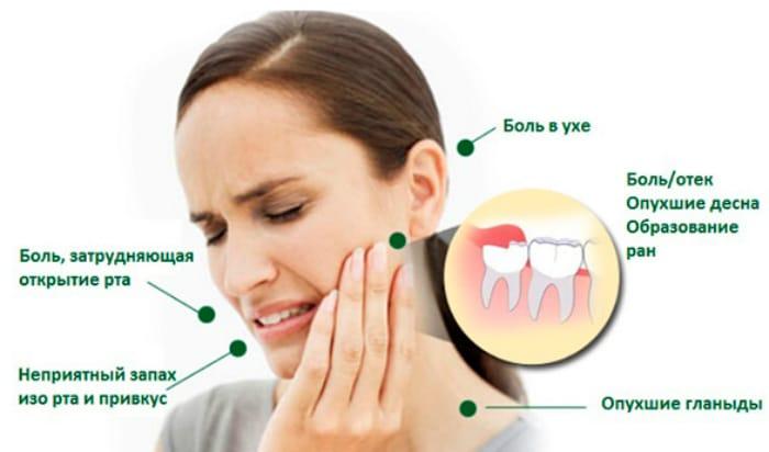 Неудобства причинённые зубной болью