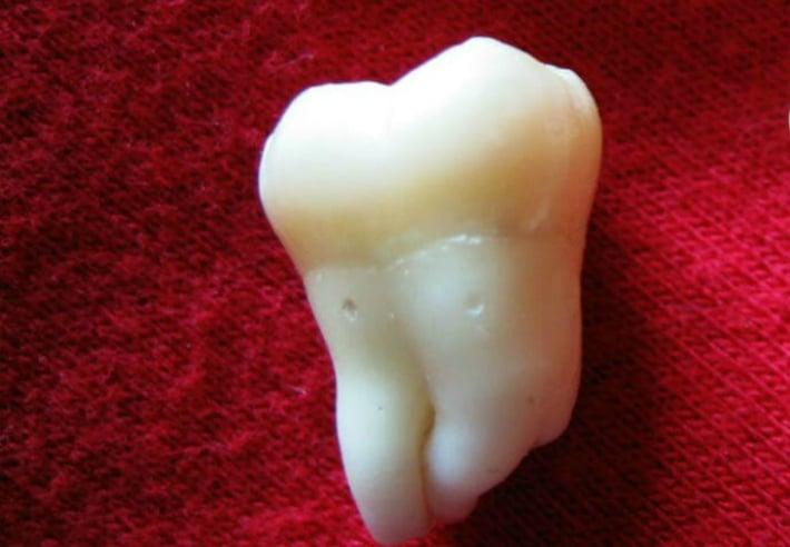 Режется зуб мудрости: что делать при болезненном прорезывании, как снять боль если опухла и болит десна