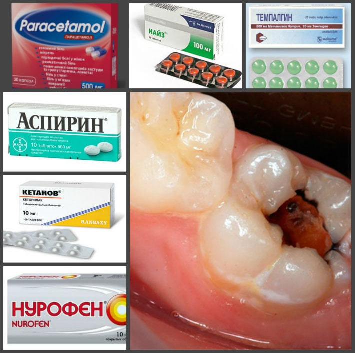 Болит зуб лечение в домашних условиях