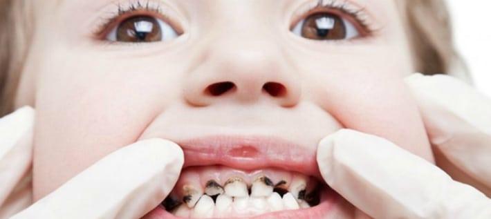 гниение зубов у детей