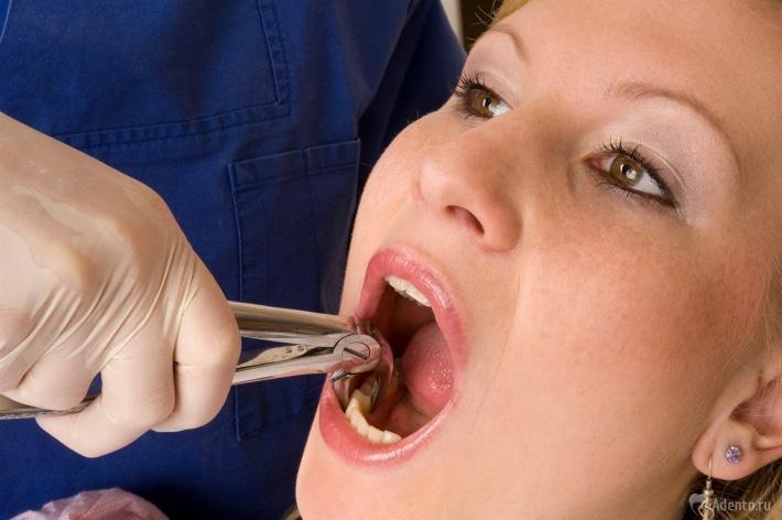 Когда можно есть и пить после удаления зуба