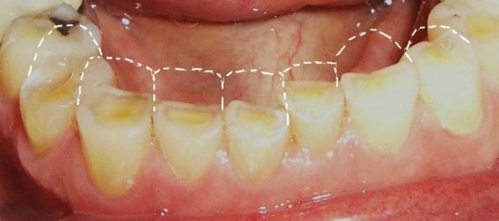 патологической стираемости зубов