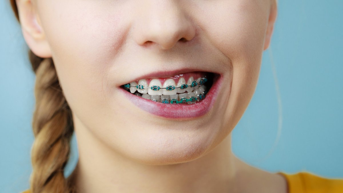 Перекошенный рот с брекетами