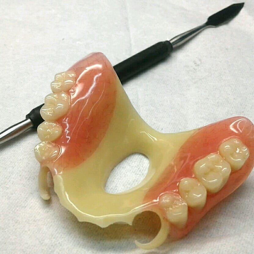 Ацеталовые зубные протезы: инновация в протезировании