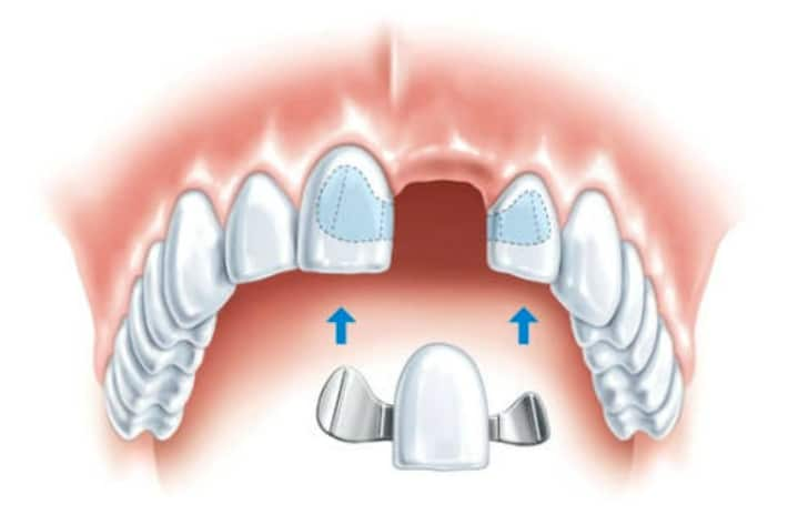 Современным методом быстрого восстановления целостности зубного ряда