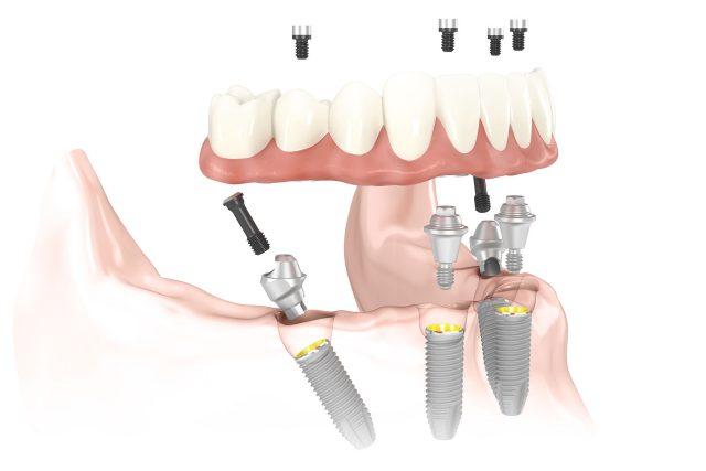 Схема установки протеза All-on-4