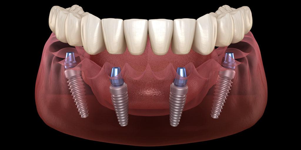 All-on-4 имплантация зубов – устранение полной адентии по разумной цене
