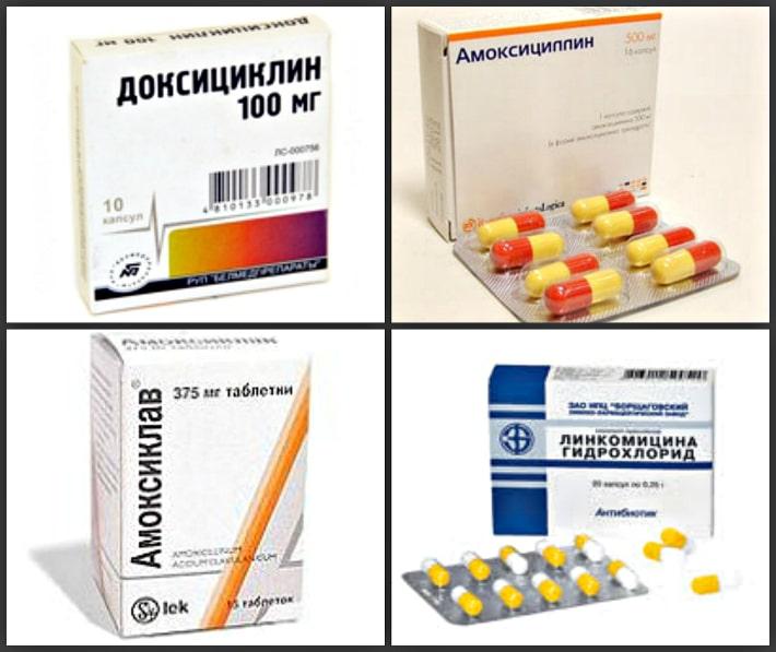 Правильно подобранный антибиотик