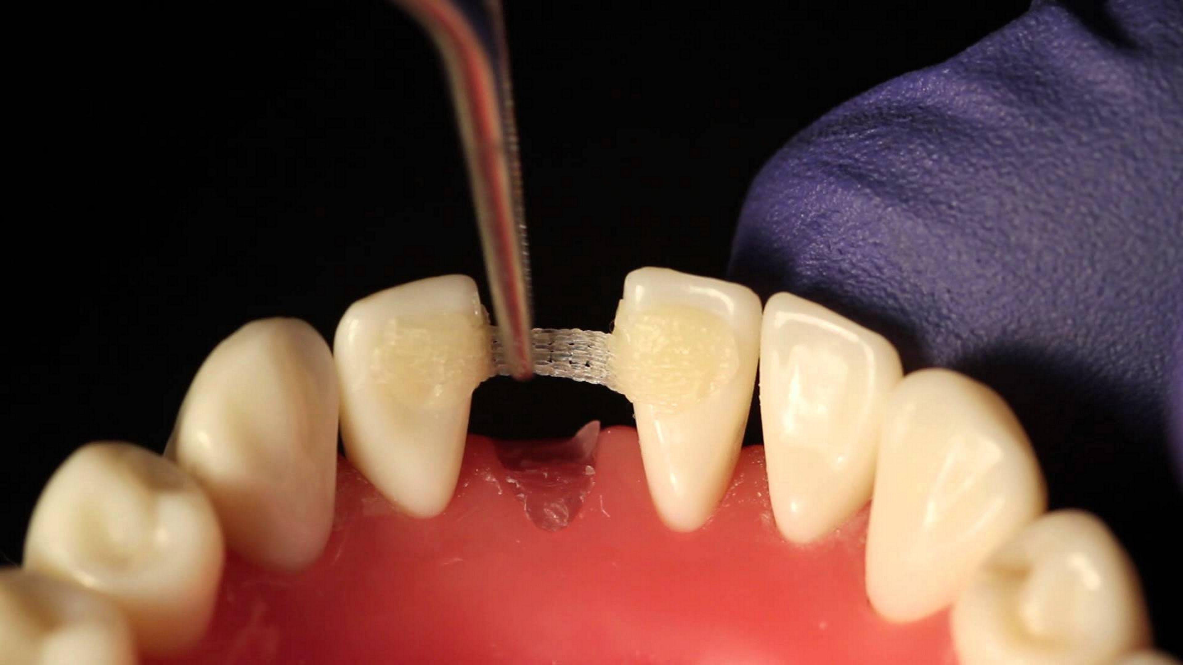 Установка стоматологической ленты