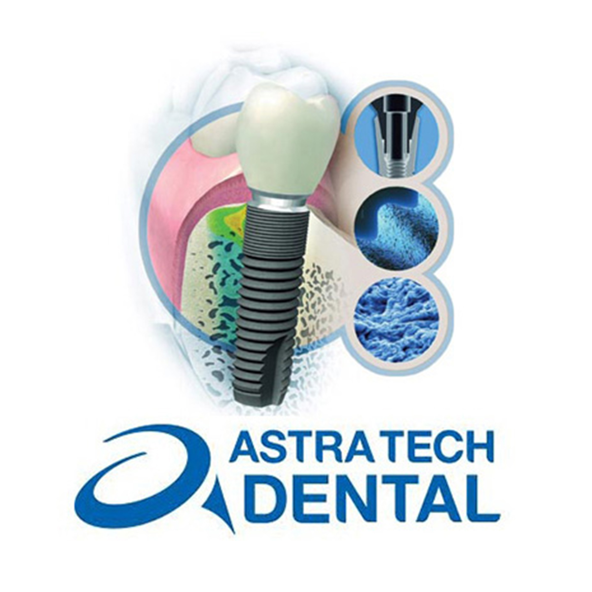 Импланты Astra-Tech