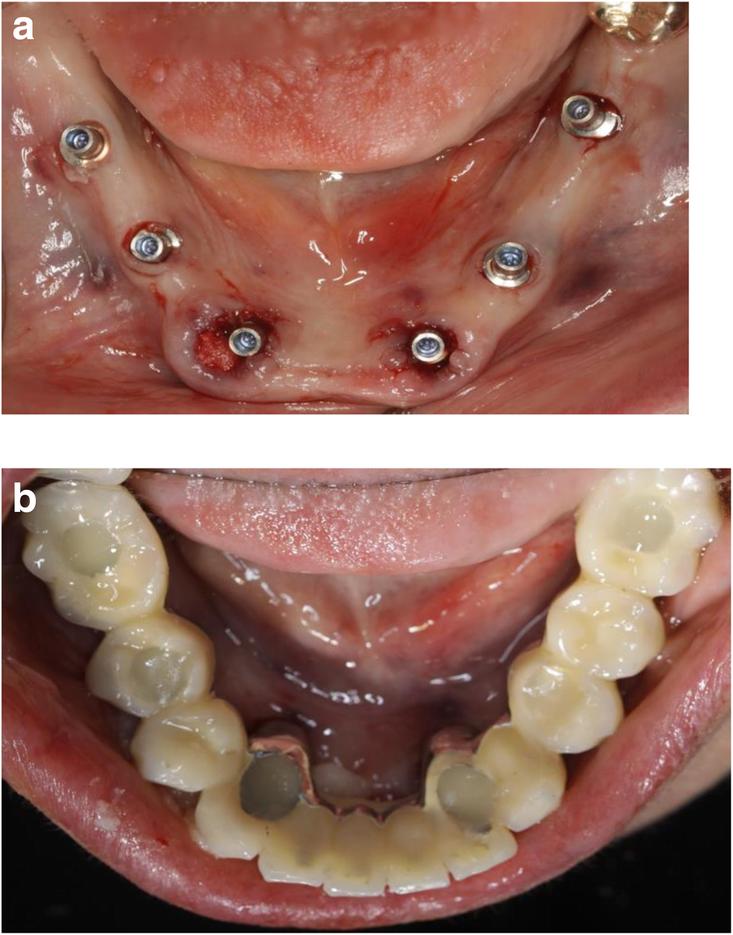 Установка балочной конструкции зубов