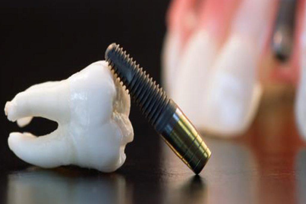 Суть метода бескровной имплантации зубов