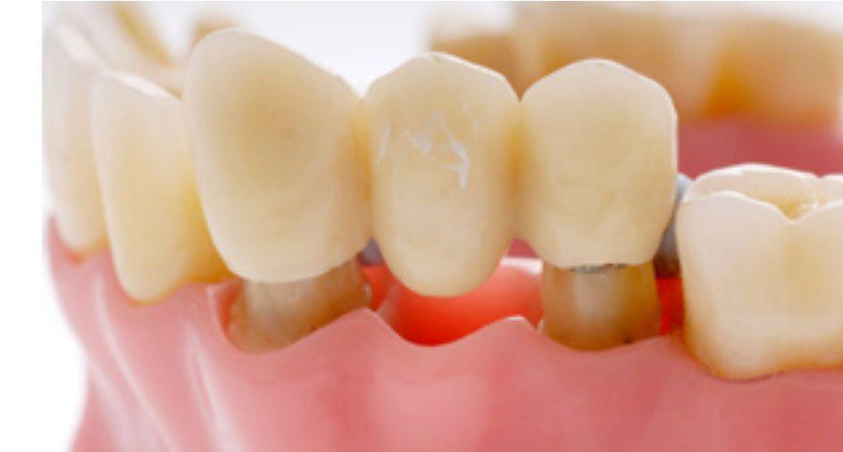 Методы протезирования зубов без обточки