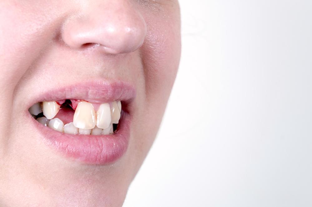 Без зуба