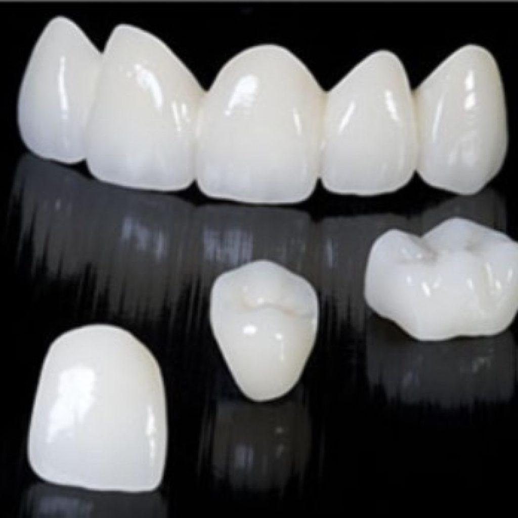 Безметалловая керамическая зубная коронка