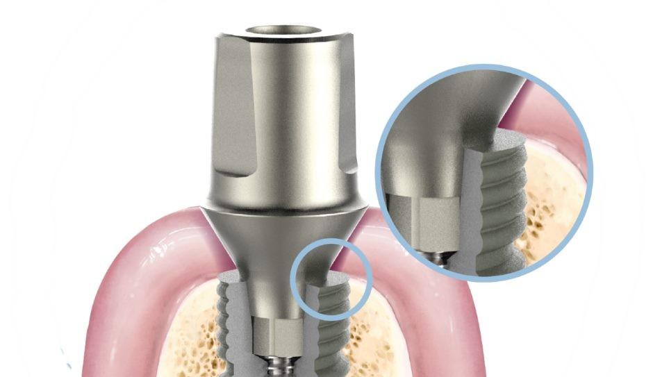 Имплант Biomed