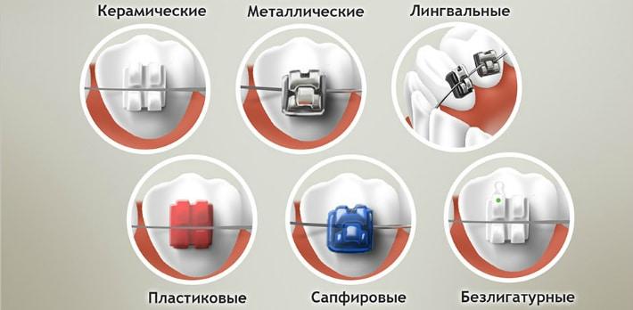 Разнообразие брекет-систем