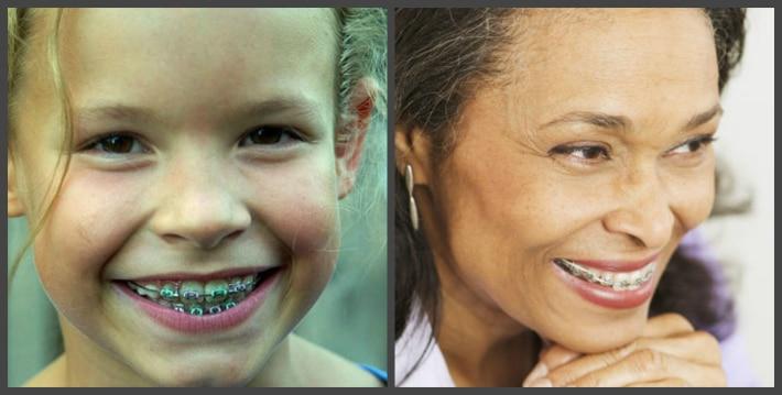Способ устранения дефектов зубного ряда