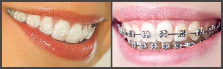 Эстетический вид зубов в брекет-ситеме