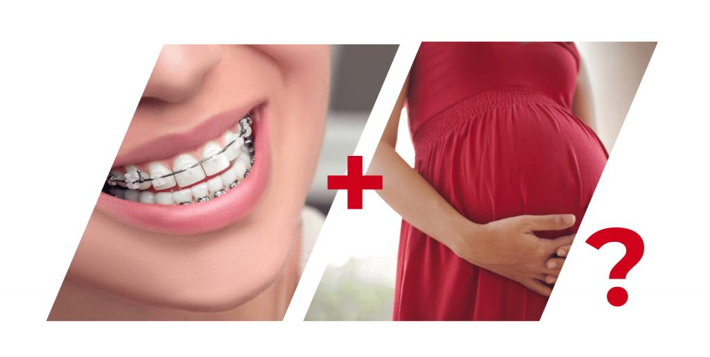 Можно ли беременным устанавливать и носить брекеты: все за и против