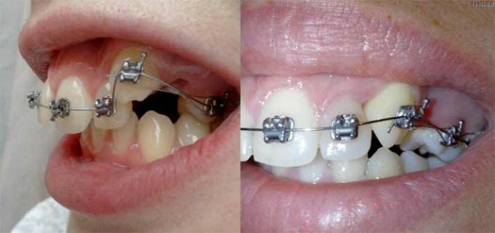Выравнивание скрученных зубов при помощи брекет системы