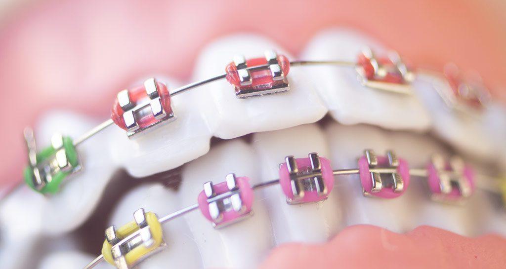 Портят ли брекеты эмаль зубов