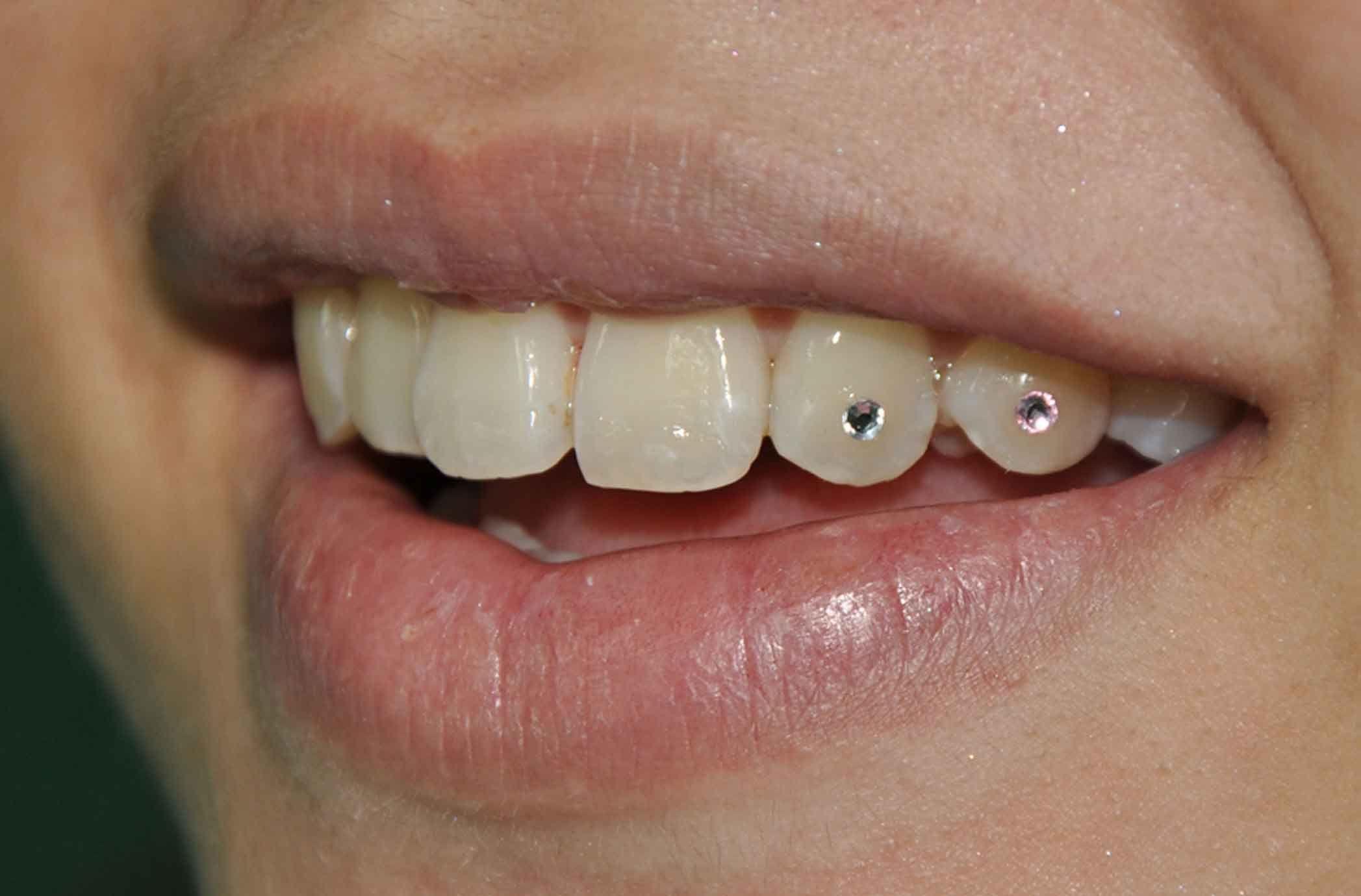 Бриллианты на зубах