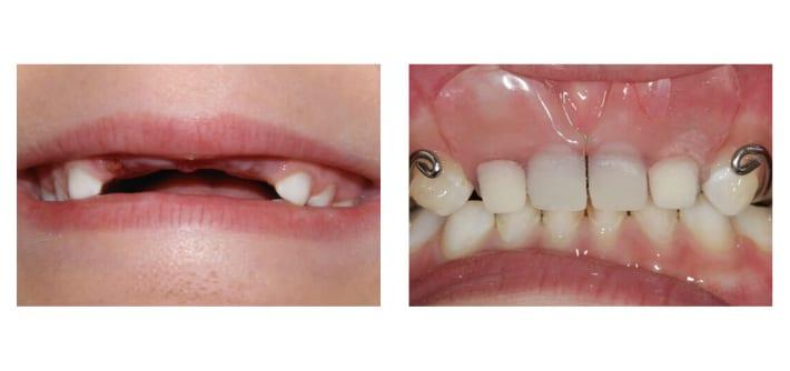 Отсутствие большей части зубного ряда