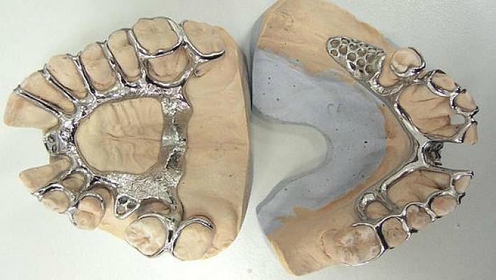Отливка гипсовой модели челюсти