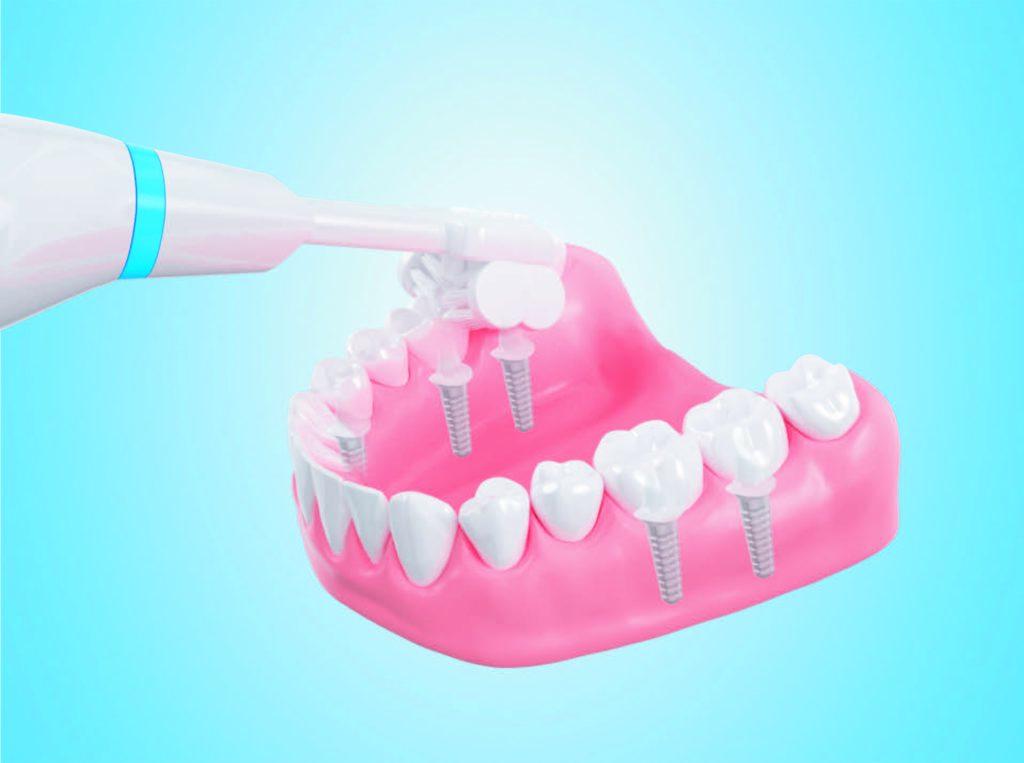 Чистка зубного импланта