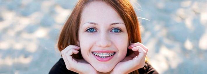 Как правильно чистить и ухаживать за зубами в брекетах
